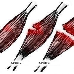 Tiempo de recuperacion muscular isquiotibial contractura